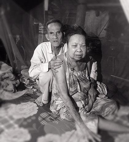 Radio kỳ 317:  Đôi vợ chồng già trong căn nhà dột nát